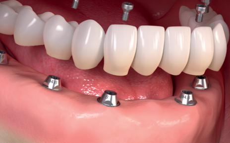 Full Mouth Dental Implants - 5 Things to Know Before Consultation